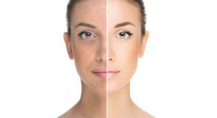 Get Rid Of Pigmentation